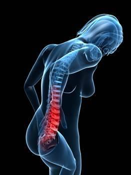 Osteoporosis 1a