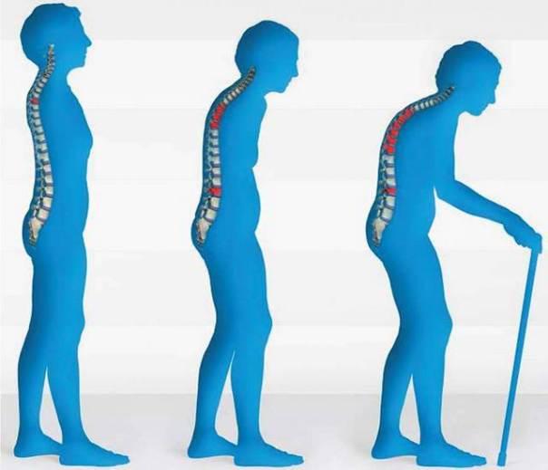 osteoporosis221