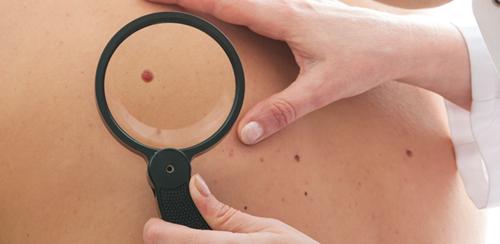 medico examinando pele
