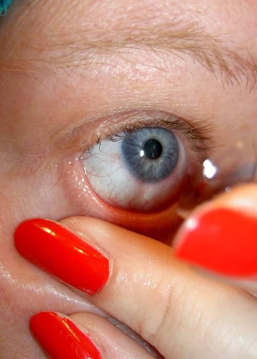 lentes de contato - Foto J. Durham