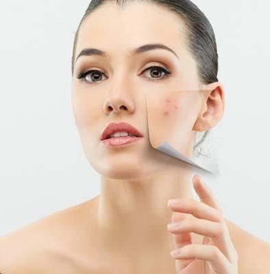 aiba_como_se_livrar_da_acne_web_