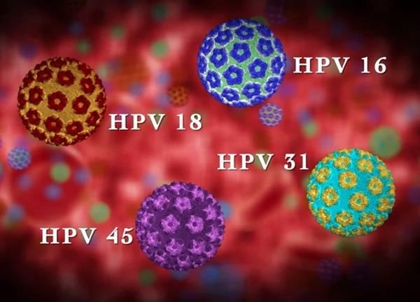 HPV-Infection vírus