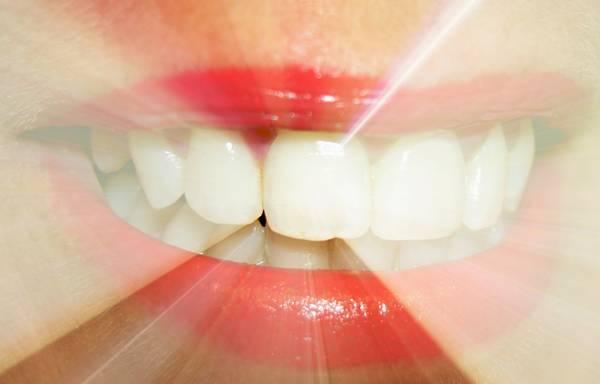 dentes lindos - j. durham
