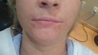 vitiligo1