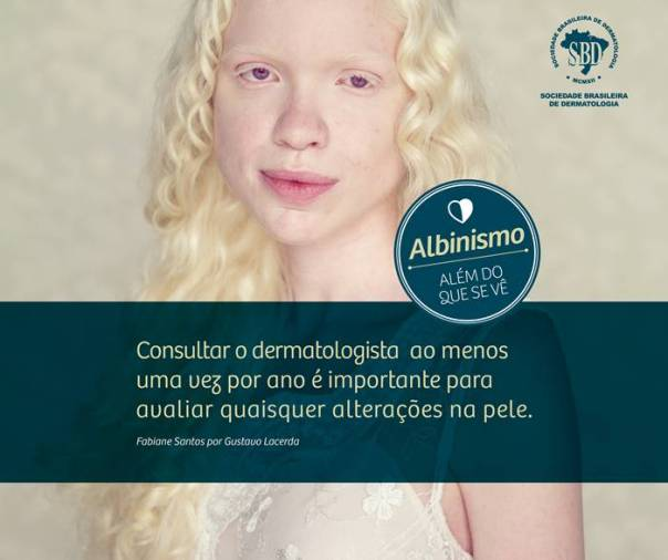 albinismo 2