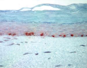 Pele_Queratinócitos-normais-BrdU-300x236