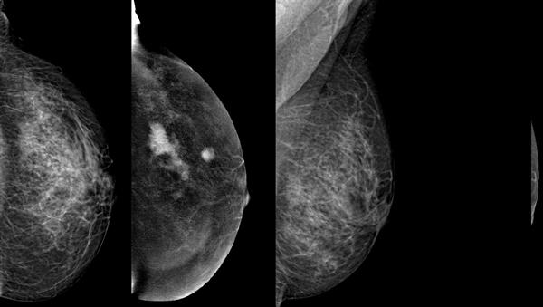 mamografia-com-contraste