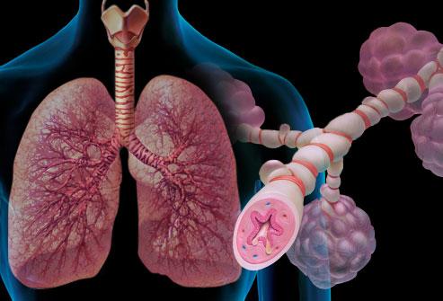 asma pulmão