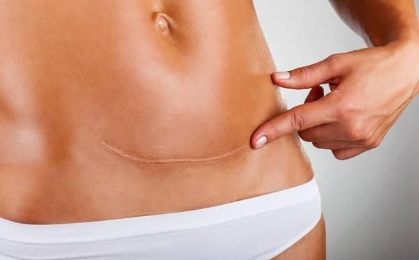 cicatriz-mulher-corpo