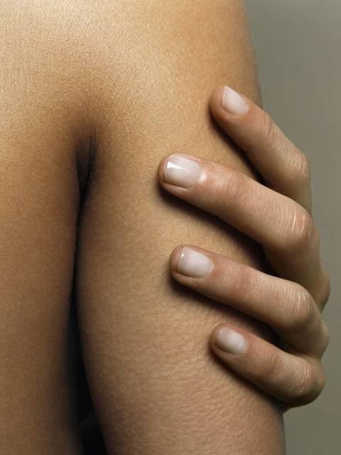 gordura braco pele morena braço.jpg