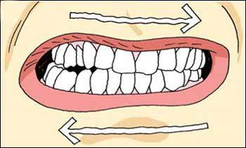 dentes bruxismo