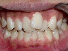 dentes tortos pinterest