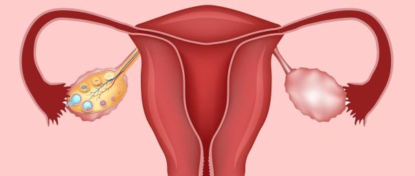 Polycystic-Ovaries inviTRA