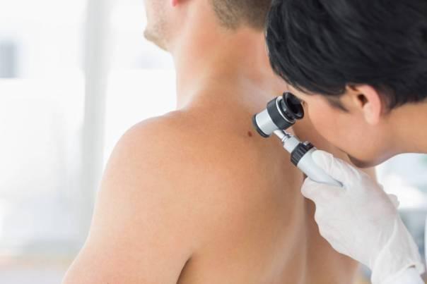 melanoma pele exame medico