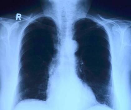 raio x pulmão torax toubibe pixabay