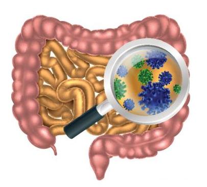 microbiota intestino SII