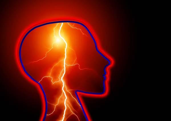 epilepsia AVC convulsão pixabay