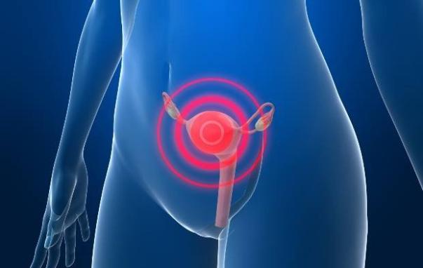 cancer colo de utero getty images