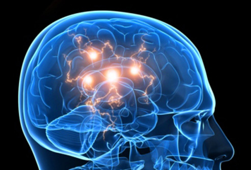 493ss_thinkstock_rf_active_brain