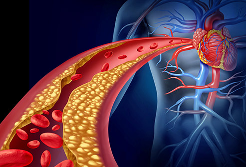 493ss_thinkstock_rf_artery_clogged_with_cholesterol