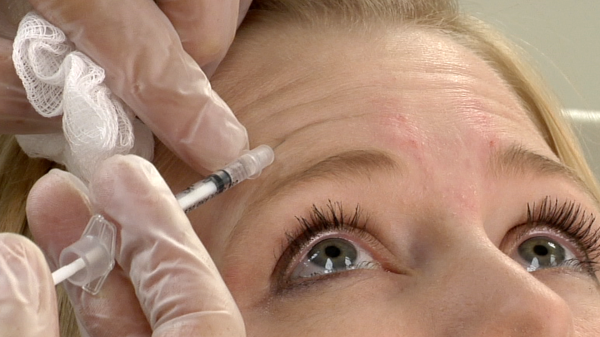 cosmetic-injectables-botulinum-toxin botox
