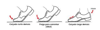 pés 2