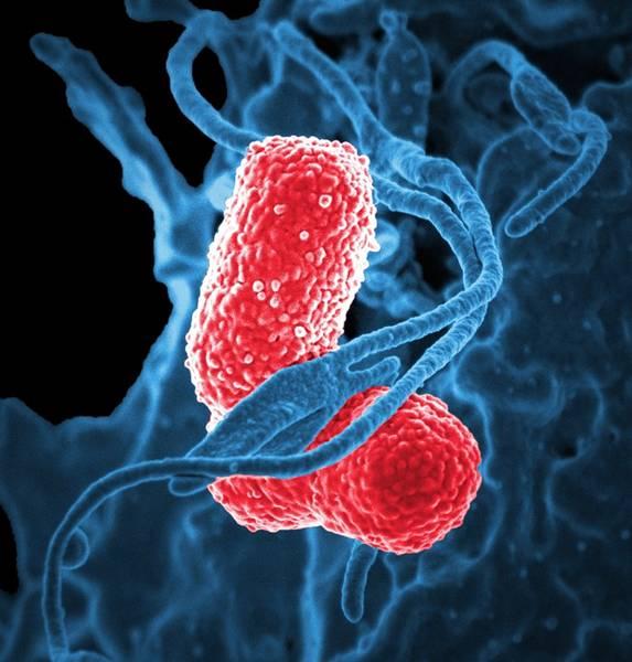 bacterias microscopio pixabay