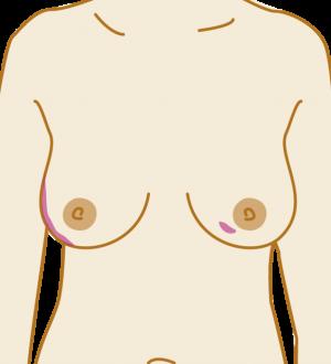 seios cancer sinais breastcancercare