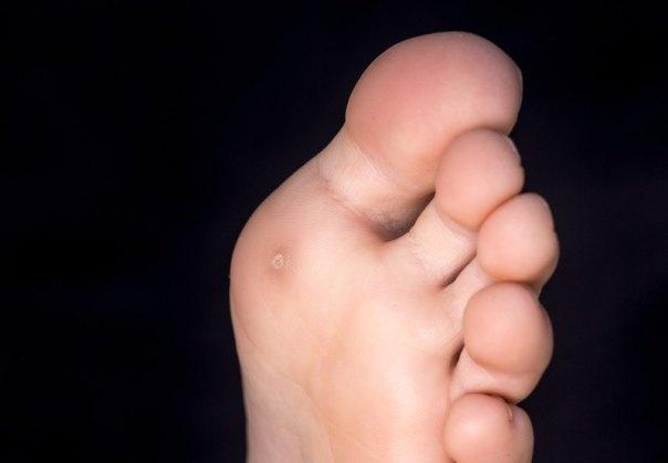 pés calos abpte