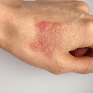 queimadura mão