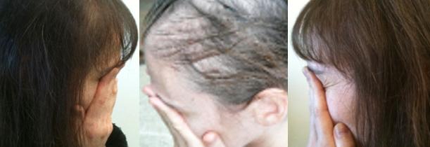 laserhairgrowtreatment-dallstx cabelo crescendo