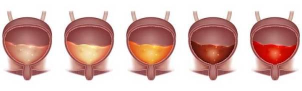 universal health news cores urina