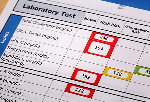493ss_thinkstock_rf_cholesterol_test_results