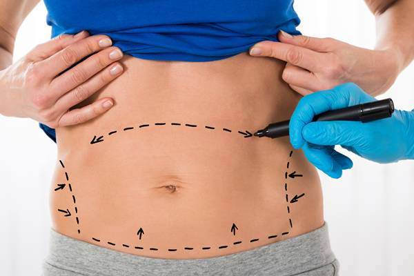 Surgeon Hands Drawing Correction Lines On Stomach