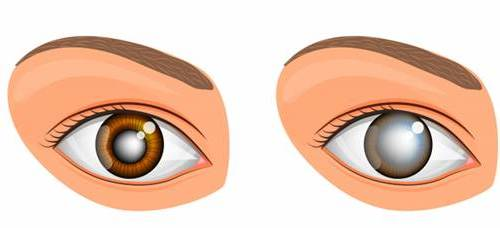 olhos glaucoma catarata