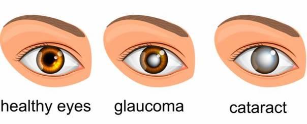 olhos normais glaucoma catarata
