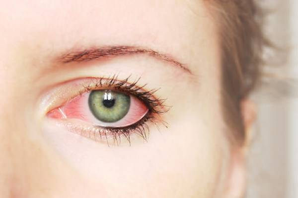 olhos vermelhos blefarite healthstatus