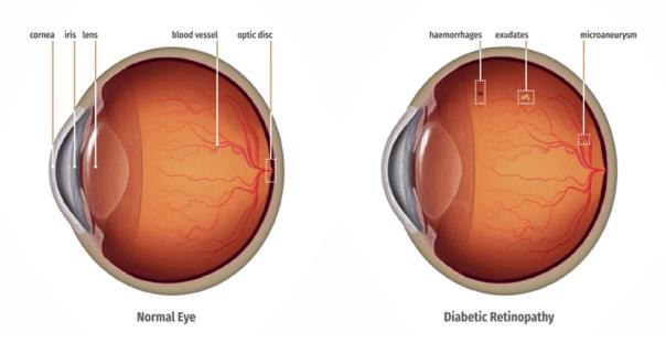retinoparia diabetica olhos