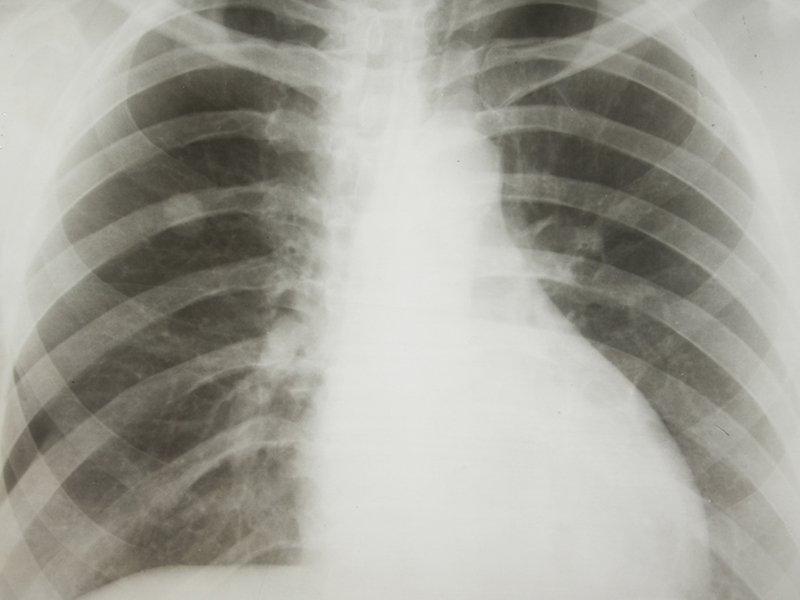 rastreamento cancer medscape.jpg