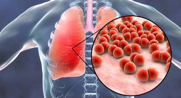 Pneumonia.jpg