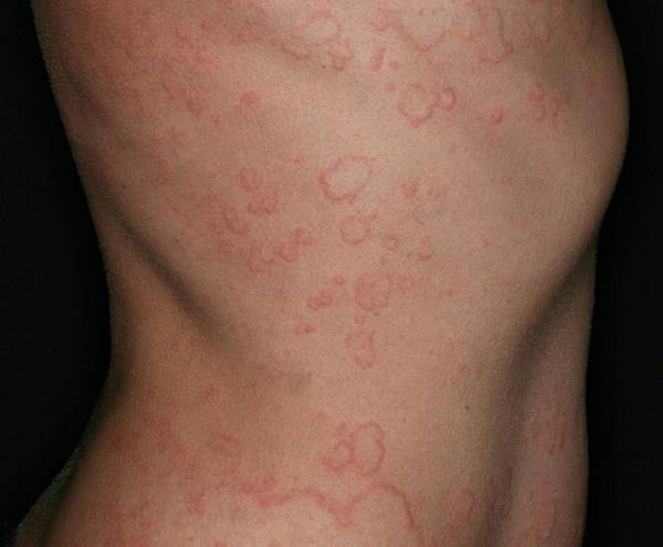 Chronic_spontaneous_urticaria wikipedia