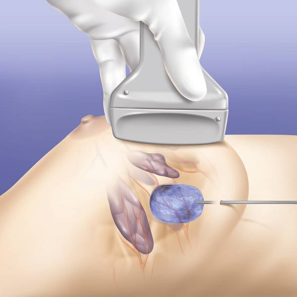 crioablacao cancer de mama