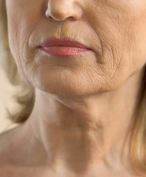 pele enrugada mulher