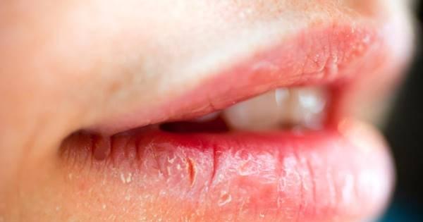 labios rachados secos healthgrades