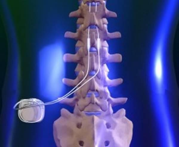 chip-neuromodulador-e-opcao-para-alivio-da-dor-cronica-na-coluna-jpg