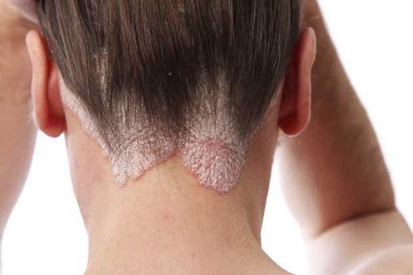 dermatite seborreica belgravia centre