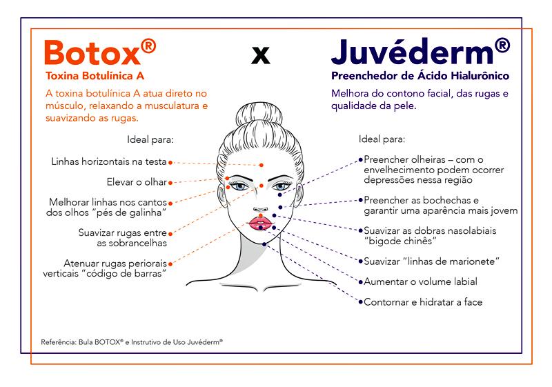 infografico_botox_juvederm_Prancheta 1 (002)